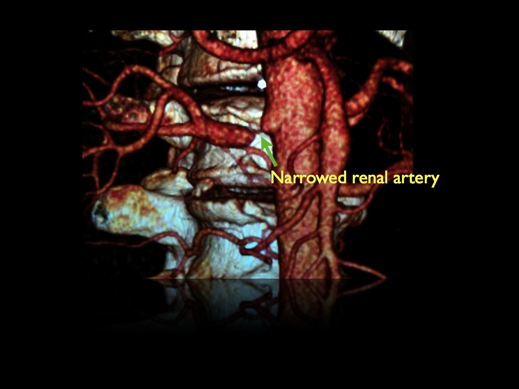 CT Angiogram demonstrates high grade narrowing (stenosis) in renal artery