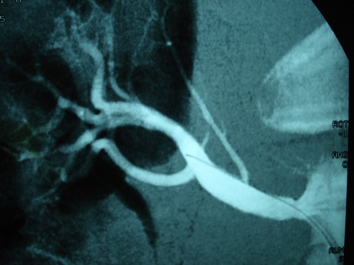 Restoration of calibre and flow post renal artery stenting. Patient was able to cease blood pressure medications.