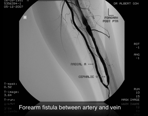 Forearm fistula between artery and vein