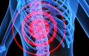 Spinal-sydney-medical-interventions