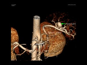 SMI_aneurysm-001