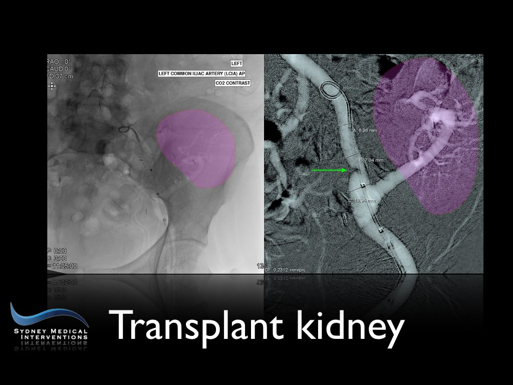 carbon dioxide angiogram, angioplastly, transplant kidney, artery stenosis, vascular disease