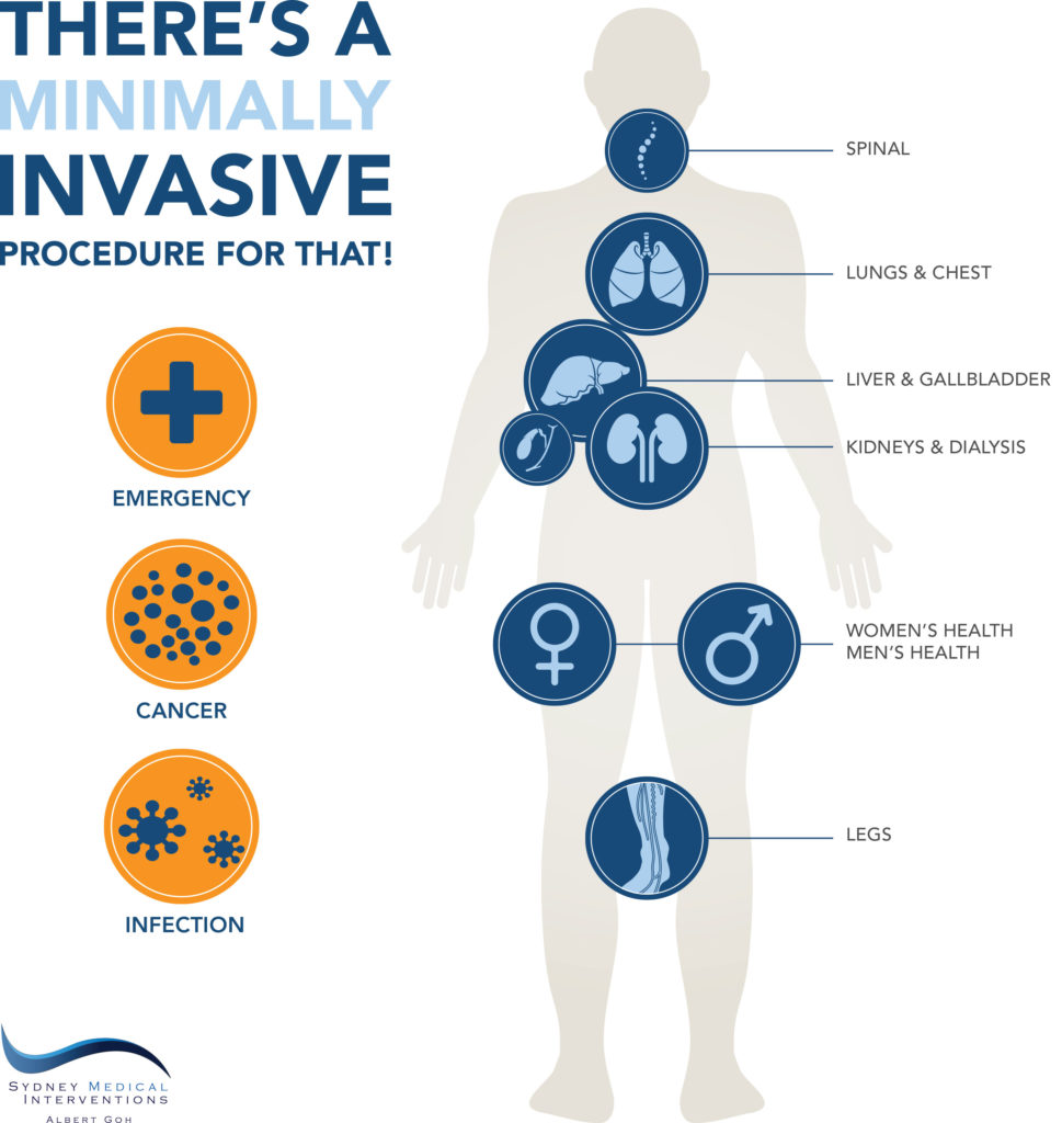 1804-024-Min-Invasive-Infographic_P2